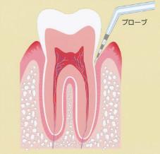 名古屋市緑区「ありまつ歯科」歯周病について|原因・検査方法(プロービング)・進み方等